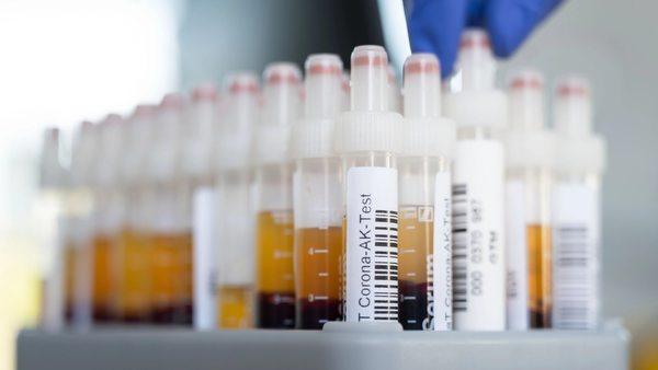Hinweis auf Immunität: Sind Antikörpertests für zuhause seriös?