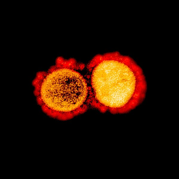 The coronavirus disarms the foot soldiers of the immune system. Scientists theorize that boosting them could fight covid-19.