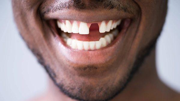 Tiktok-Tipps Zähne feilen und bleichen: Besser nicht nachmachen, rät ein Zahnarzt