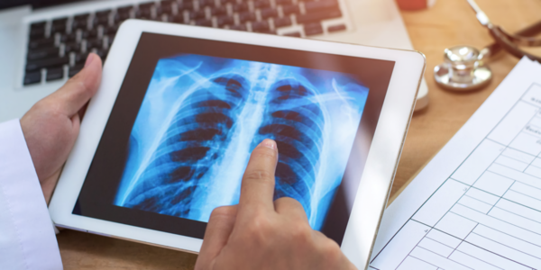 MIT CSAIL claims its AI system can predict and classify pulmonary edemas