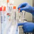 RKI: Viele Labore an Grenzen der Auslastung – erheblicher Rückstau von Corona-Proben