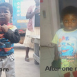 Swollen-up 3-yr-old Michael gets 15k donation to help save his kidneys after GhanaWeb story