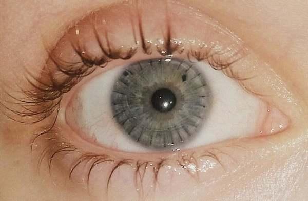 Reddit user u/Marskaye's photo of their transplanted cornea was our favorite photo this month