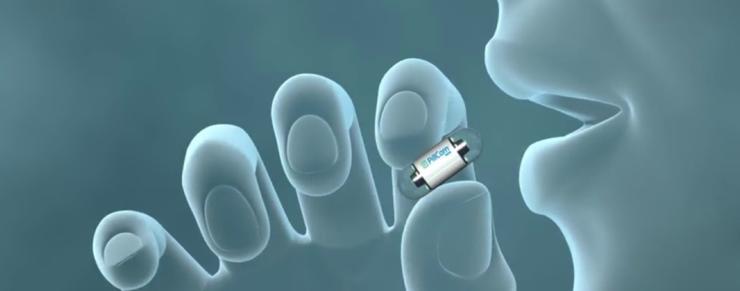 Kapsel-endoskopi