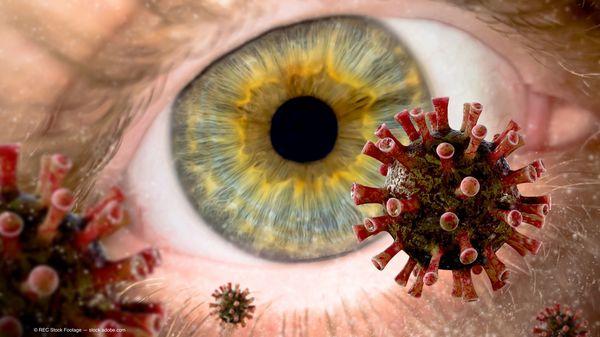 COVID-19 impacts keratoconus patients waiting for corneal crosslinking