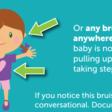 Ecchymose : un outil de dépistage pour distinguer la maltraitance, du bobo accidentel chez les moins de 4 ans