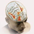 Mild zaps to the brain can boost a pain-relieving placebo effect | Science News