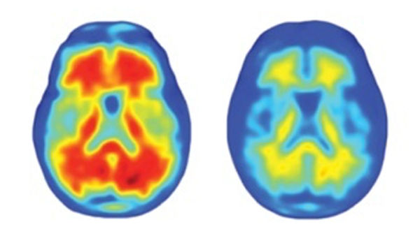 Alzheimer's drug approved despite doubts about effectiveness | Science | AAAS