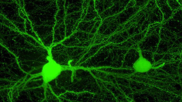 The Amazing Brain: Toward a Wiring Diagram of Connectivity – NIH Director's Blog