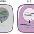 Scientists reverse a key hallmark of motor neurone disease in the laboratory