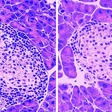 Research into small protein sheds light on battling diabetes
