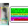 Using AI and old reports to understand new medical images