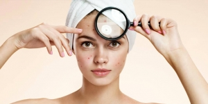 Myths About Your Acne