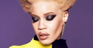 Wet n Wild Model Albinism