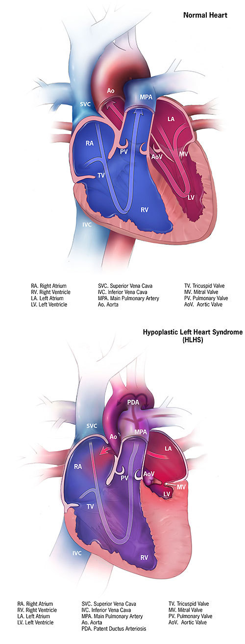 Normal Heart & Hypoplastic Left Heart Syndrome Illustration