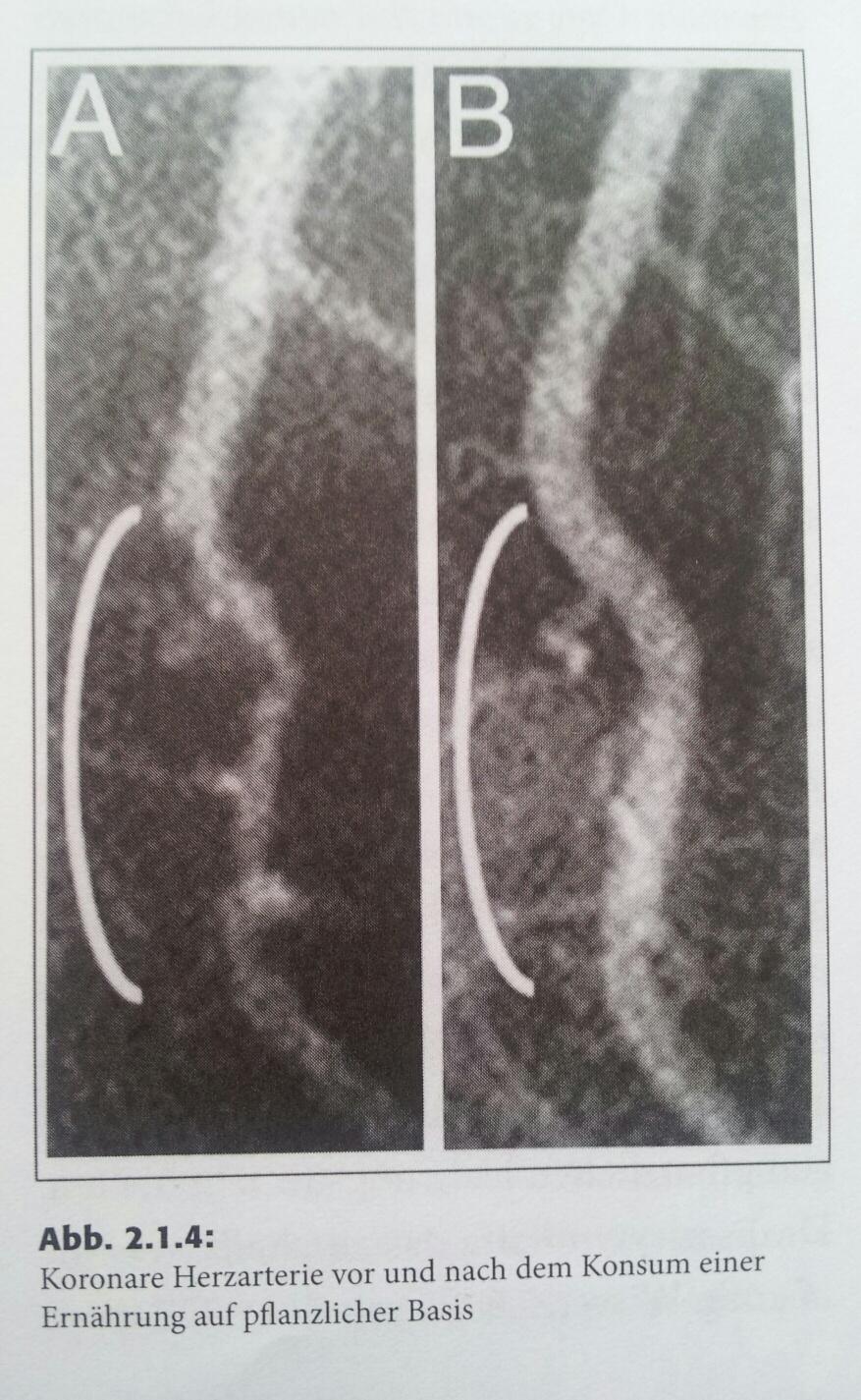 Koronare Herzarterie