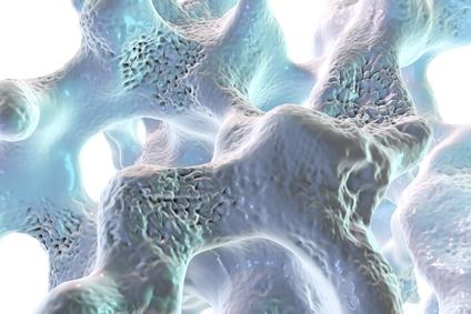 Osteoporose, brüchiger Knochen
