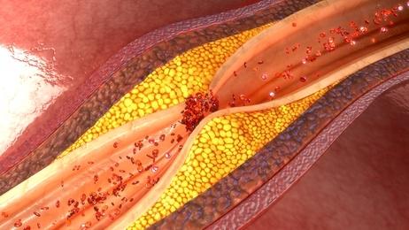 Vitamin-E Herzinfarkt
