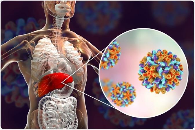 ELIMINAR LA HEPATITIS EN AMÉRICA LATINA YA ES POSIBLE