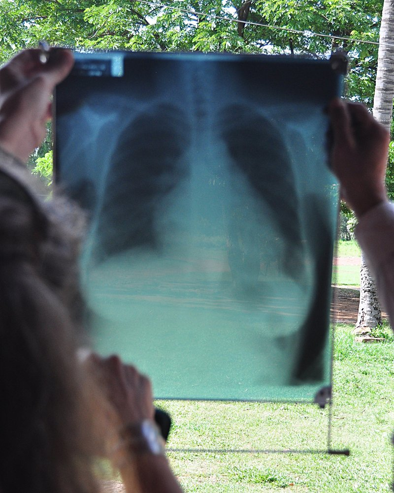 sep 17 8926 pneumonia lungs