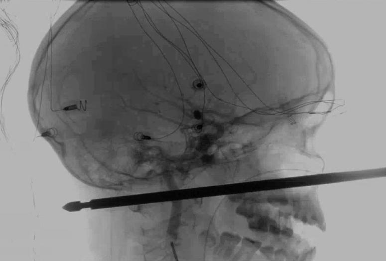 This X-ray provided by the Medical News Network shows a meat skewer impaled in the skull of Xavier Cunningham after an accident at his home Saturday, Sept. 8, 2018, in Harrisonville, Mo.