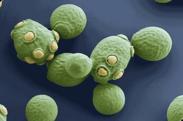 Levadura Saccharomyces cerevisiae
