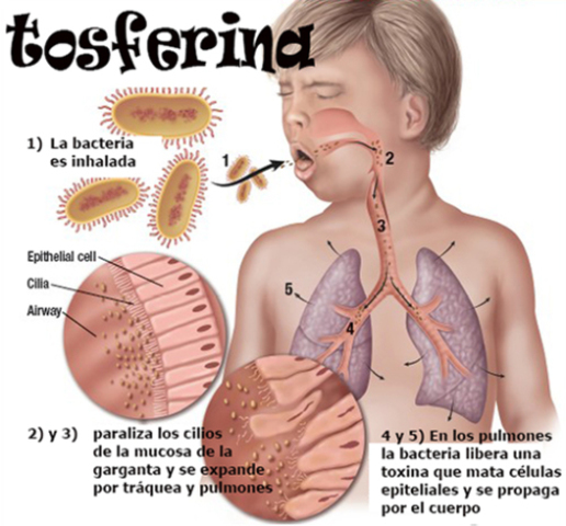 Primera vacuna para la Tosferina