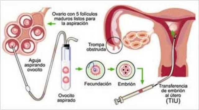 Fecundación artificial.