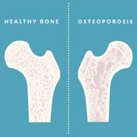 Concern: risk for osteoporosis -bone loss