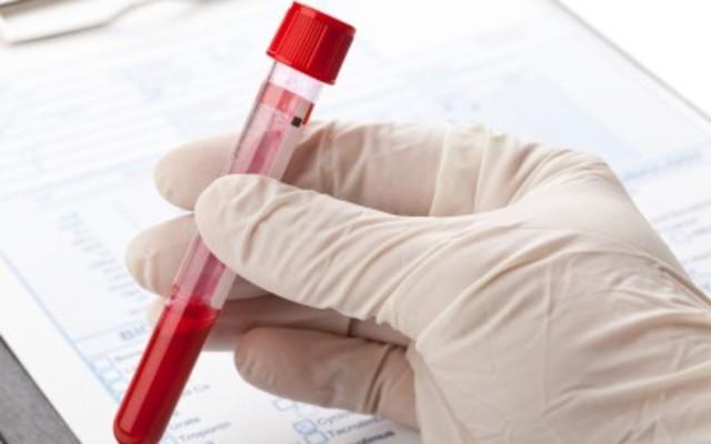 have diabetes screening and skin exam