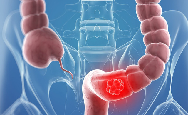 have colorectal cancer screening