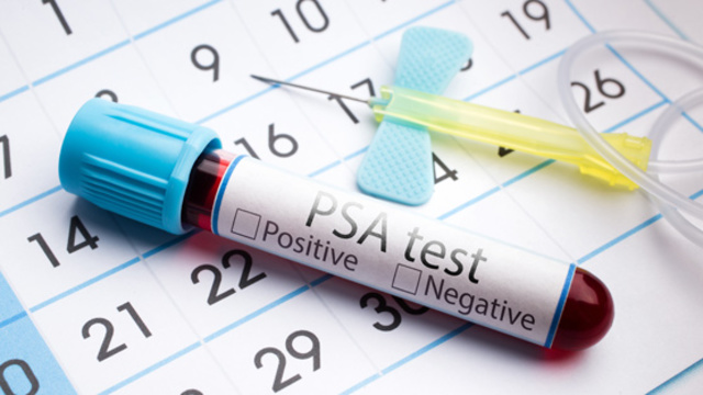 have prostate cancer screening