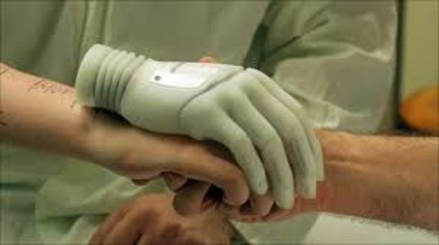 Primer implante de mano