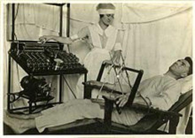 Electro-convulsive Therapy Begun