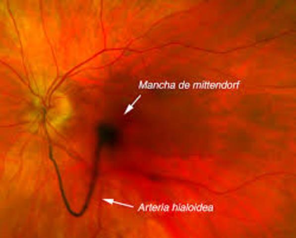 4° Mes - Arteria hialoidea