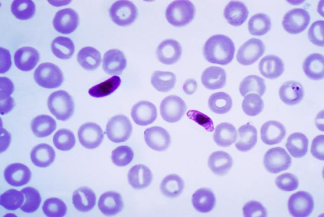 Plasmodium falciparum is described as the causative agent of malaria