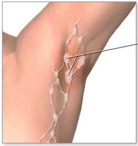 Lymph Node Involvement