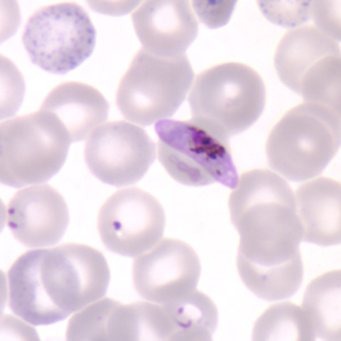 Plasmodium falciparum described