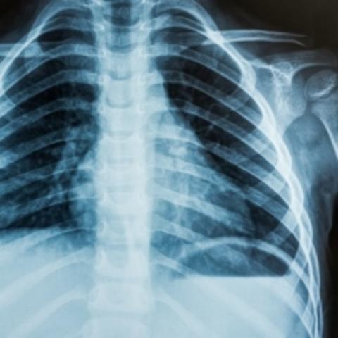 Descubren los rayos X - Wilhelm Röntgen