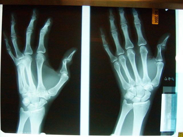 Broke Trevor's Thumb