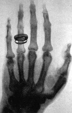 Descubrimiento de los rayos X