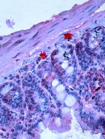 Modelo de ratón para estudios de mastocitos ideado.