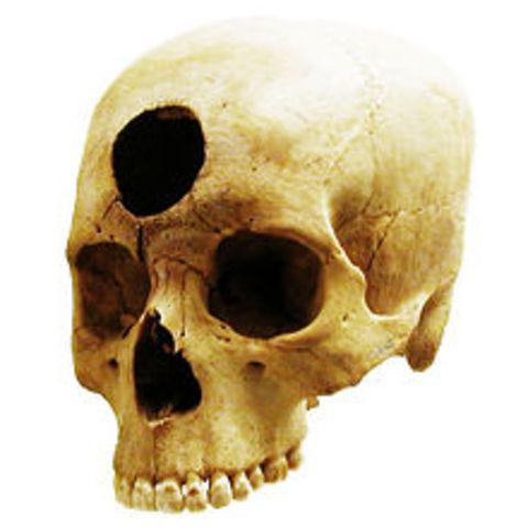Primeras evidencias de trepanaciones, y obsevaciones e investigaciones de cuerpos