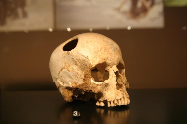 Principios de la Cirugía - Neolítico