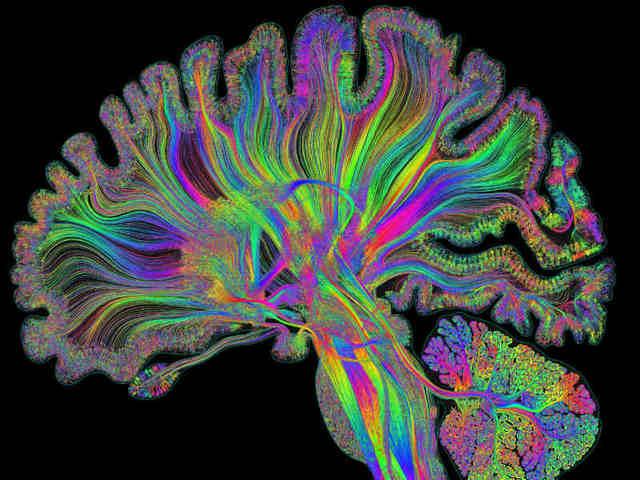 Educación del siglo XXI: neurociencia y despertar tecnológico