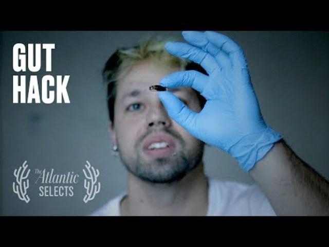 "Josiah Zayner Films ""Gut Hack"" - a DIY Microbiome Transplant experiment"