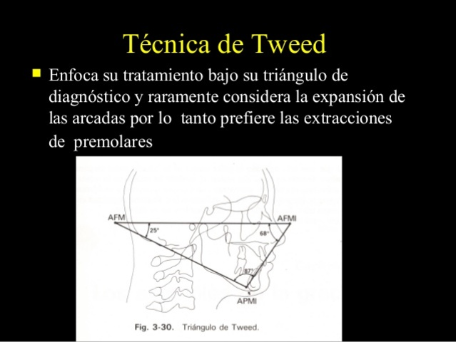 técnica de canto tweed