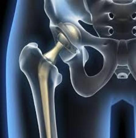 Protesis de cadera y de rodilla