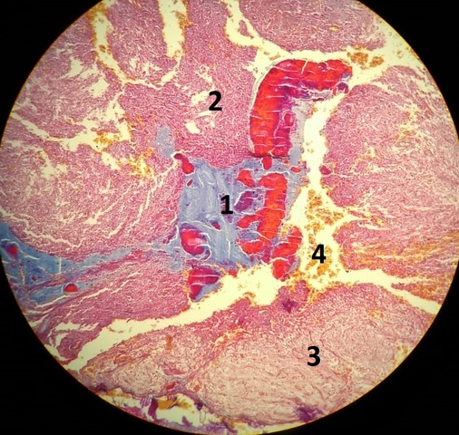 Aula 3: Glândulas Endócrinas