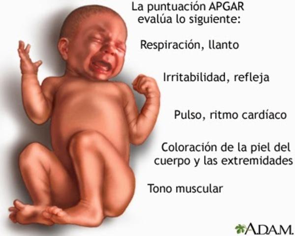 Sistema de puntuación de estado neonatal: Apgar